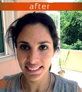 ibogaine treatment before and after 001 1